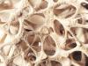 Osteoporoosin hoito vaatii pitkäjänteisyyttä