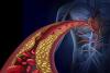 Kaksi pistosta vuodessa voi pitää kolesterolin kurissa