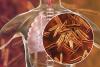 Korona ei ole ainoa uhka – tuberkuloosi on yhä yksi maailman yleisimmistä infektiotaudeista.